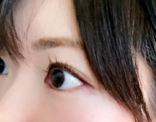 目薬の差し方